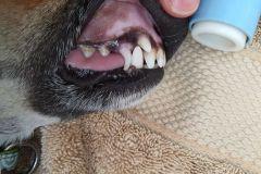 Dental17